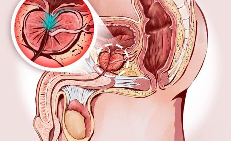 dolori addominali dopo erezione